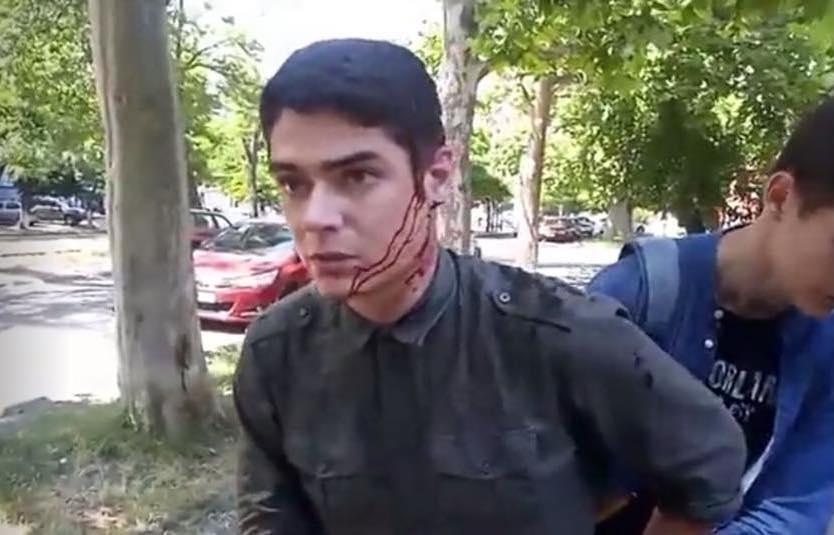 Антикорупційний активіст Віталій Устименко після нападу у червні 2018-го