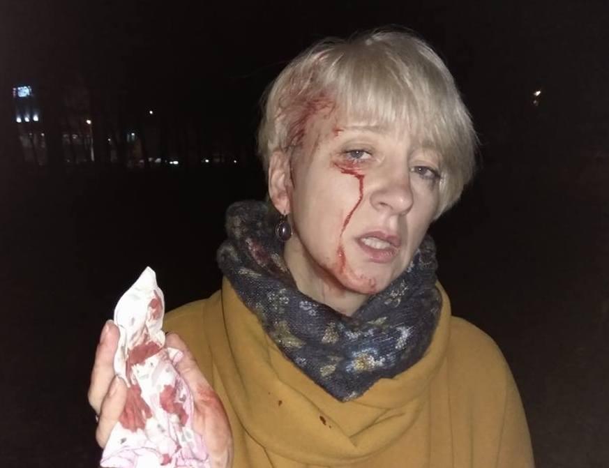 Суддя Лариса Гольник після нападу
