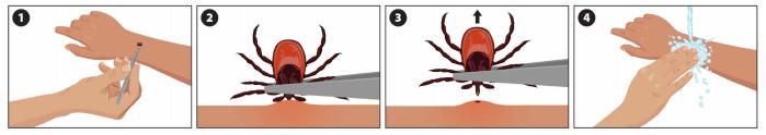 Что делать при укусе клеща