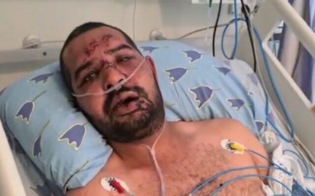 побили місцевого мешканця Саїда Мусу