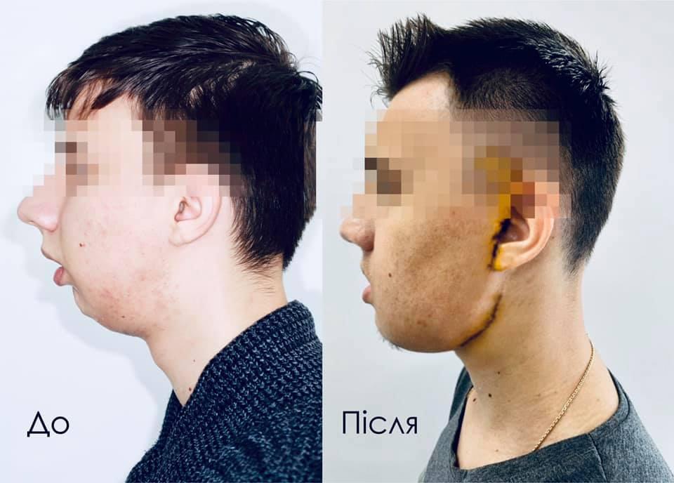 Львівські лікарі вперше в Україні провели складну операцію з реконструкції обличчя